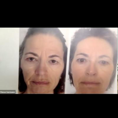 Jünger wirken mit Yoga fürs Gesicht